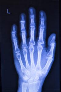 Orthopaedics CME