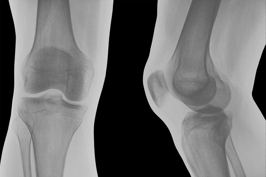 рентген суставов при артрите