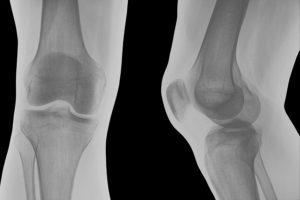 Knee Surgery Techniques