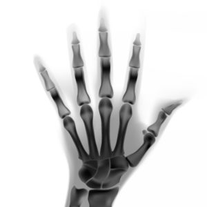 Techniques in Hand and Upper Extremity Surgery