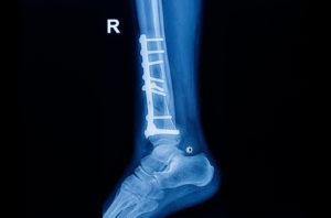 Orthopaedic Fracture
