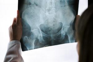 Hip Surgery Education