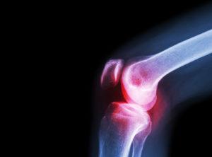 Orthopedic Conferences