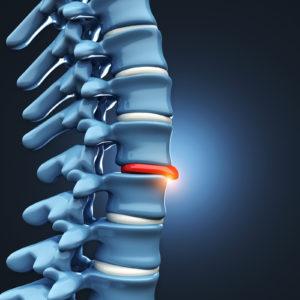 Spine Conferences