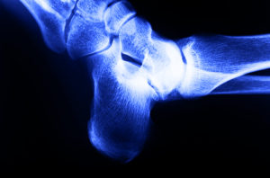 Orthopedic Meetings