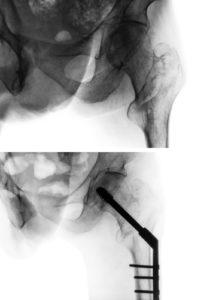Hip Surgery Techniques