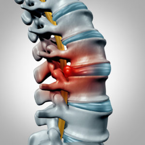 Spine CME