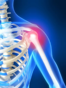 How to Perform an Arthroscopic Shoulder Stabilization